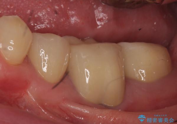 オールセラミッククラウン 歯の挺出・歯周外科による歯茎より深い虫歯 ...