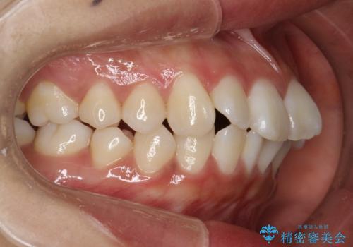 がたがたをインビザラインで整った歯並びへの治療前
