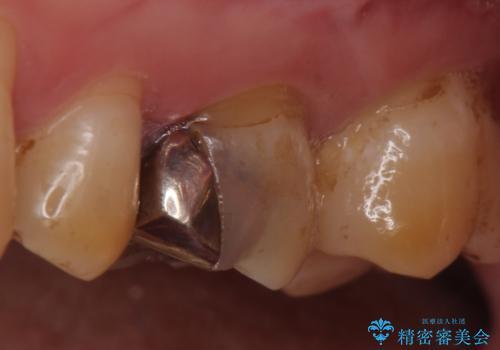 オールセラミッククラウン 失活歯の根管治療の治療前