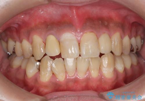 PMTC(歯科医院での専門的クリーニング)でステインを除去し白くきれいな歯に!の治療後