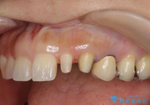 前歯が左右対称じゃない 保険の被せ物をきれいにしたい ホワイトニング併用の治療中