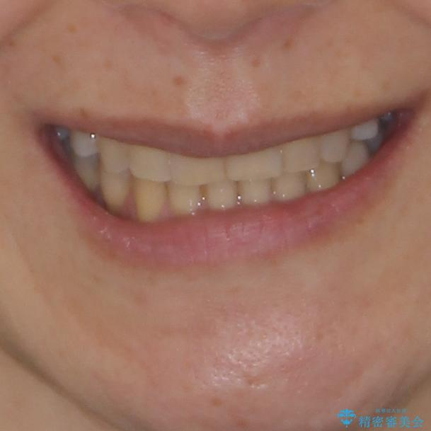 矯正の後戻りの改善と銀歯をセラミックにの治療後(顔貌)