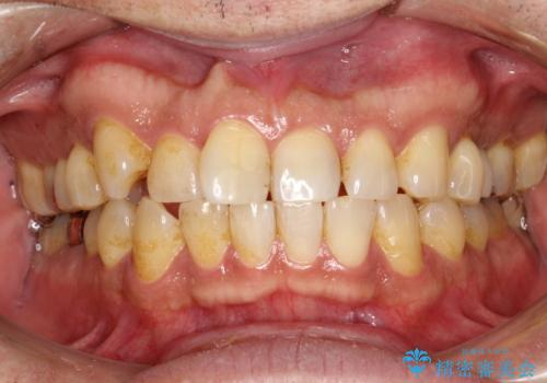 久しぶりのPMTCで歯を綺麗にの治療前