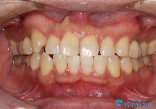 久しぶりのPMTCで歯を綺麗にの治療後