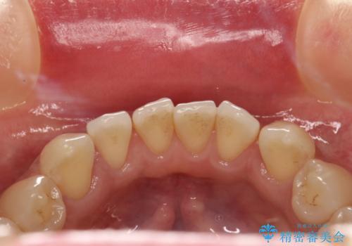 前歯の着色をPMTCできれいに除去の治療前
