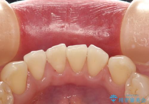前歯の着色をPMTCできれいに除去の治療後