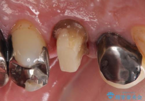 PGA(ゴールド)クラウン 脱離した銀歯の治療の治療中