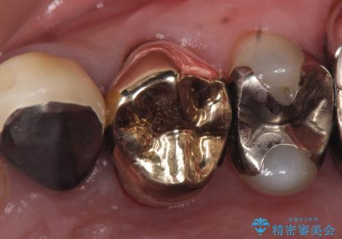 PGA(ゴールド)クラウン 脱離した銀歯の治療の治療後