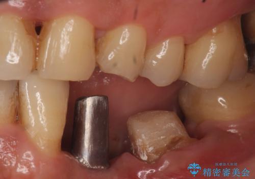 インプラント 左下奥歯の咬み合わせの改善の治療中