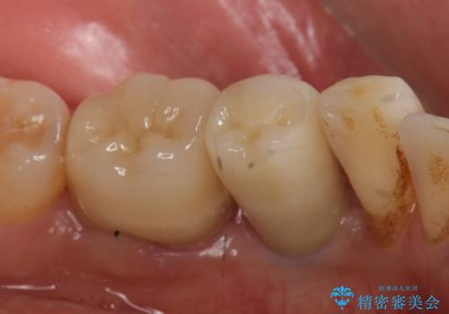 インプラント 左下奥歯の咬み合わせの改善の治療後