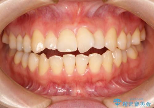 ワイヤーによる出っ歯の矯正 前歯でかめるようにの治療前