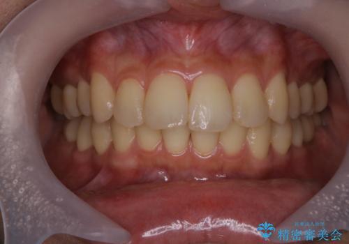 歯科衛生士による専門的なクリーニング PMTCの治療前