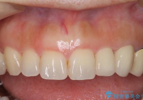 前歯が左右対称じゃない 保険の被せ物をきれいにしたい ホワイトニング併用の治療後