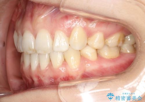 歯が前に出てて、口が閉じない 抜歯矯正による口元の改善の治療後