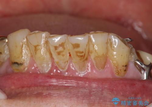 人生で初めての歯のクリーニング PMTCの治療前