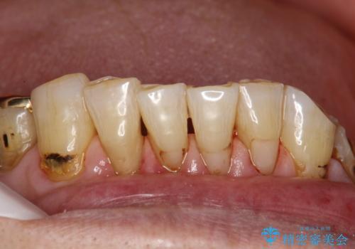 人生で初めての歯のクリーニング PMTCの治療後