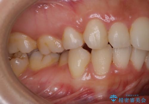 久々の来院で歯のクリーニング PMTC60分コースの治療前