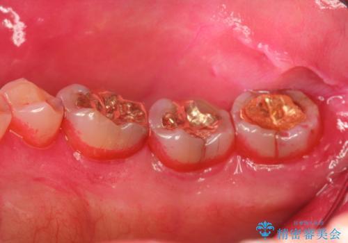 奥歯の汚れもPMTCでしっかり除去の治療前