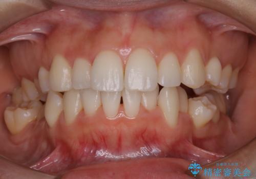 久々の来院で歯のクリーニング PMTC60分コースの治療後