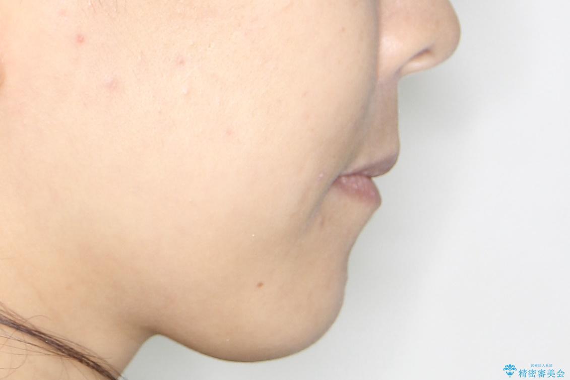 歯が前に出てて、口が閉じない 抜歯矯正による口元の改善の治療後(顔貌)
