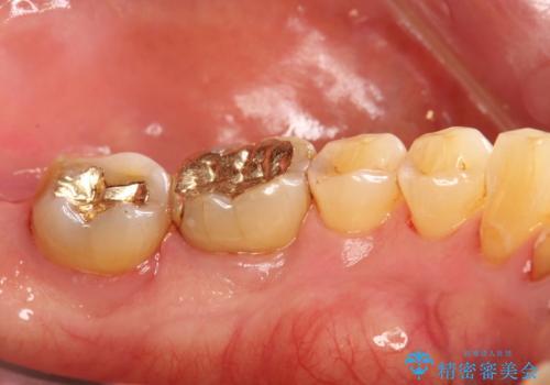 奥歯の汚れもPMTCでしっかり除去の治療後