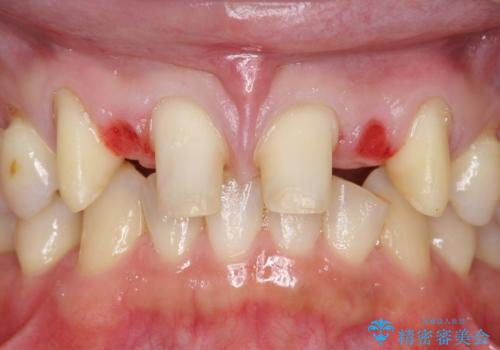 オールセラミッククラウン 部分矯正とセラミックによる前歯部の見た目の改善の治療中