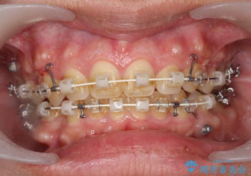 ワイヤー矯正中の歯のクリーニング PMTCの治療前