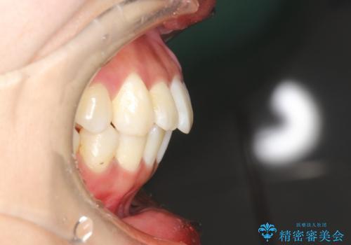がたがたをインビザラインで整った歯並びへの治療後