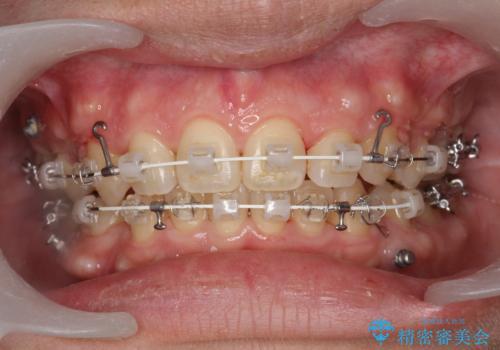 ワイヤー矯正中の歯のクリーニング PMTCの治療後