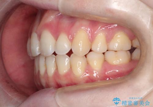 ワイヤーによる出っ歯の矯正 前歯でかめるようにの治療後