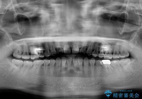 隙間の空いた前歯を治したい インビザライン矯正治療の治療前