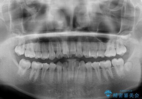 前歯のデコボコを短期間で治療 目立たないワイヤー矯正の治療前