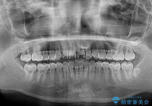 前歯のデコボコを短期間で治療 目立たないワイヤー矯正の治療後