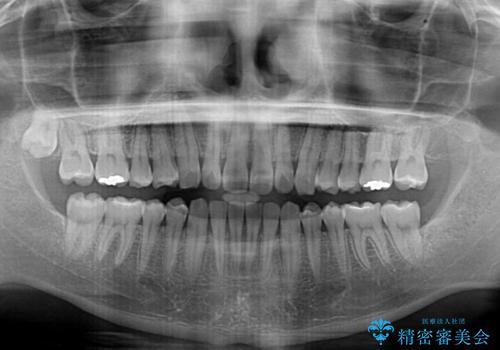 気になる後戻り 前歯をインビザライン・ライトで改善の治療中