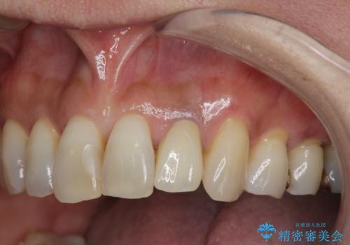 [歯の変色]  根管治療 セラミッククラウンの製作の治療後