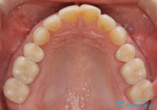 口の中の金属を外したい セラミッククラウンによる治療の治療後