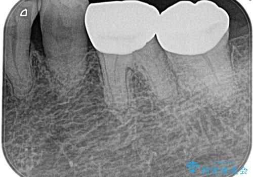奥歯がズキズキ痛い 根管治療の治療前