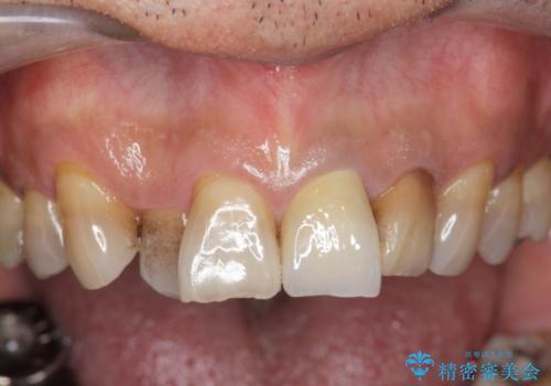 [前歯 セラミック治療]  すぐに前歯が取れる きちんと治療して欲しいの治療後