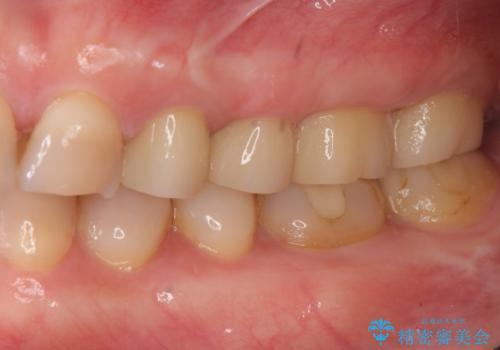 放置した虫歯 根管治療 フルジルコニアクラウンの治療後