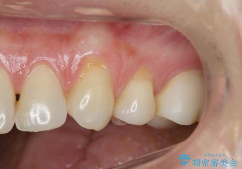 歯磨きすると歯がしみる 結合組織移植による根面被覆の治療前
