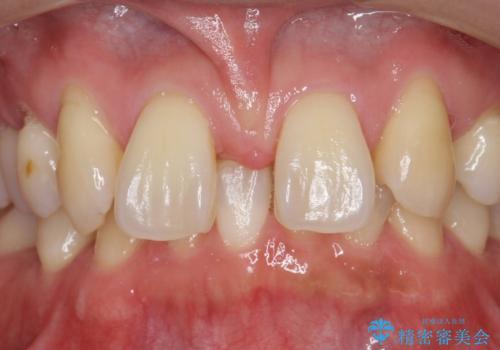 オールセラミッククラウン 部分矯正とセラミックによる前歯部の見た目の改善の治療前