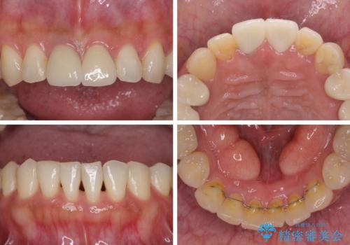 気になる部分を全て治療 総合歯科治療で口腔内環境改善の治療後
