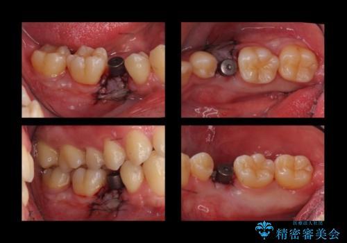 20代男性 奥歯のインプラント 自分の骨を移植の治療中