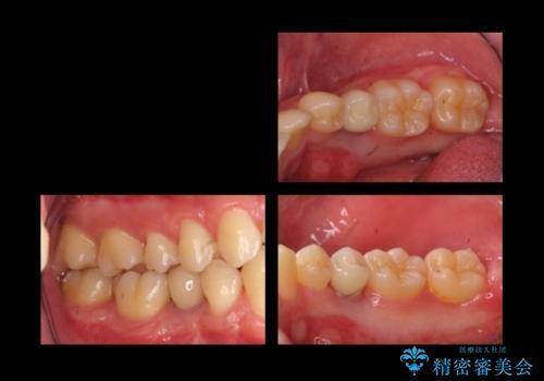20代男性 奥歯のインプラント 自分の骨を移植の治療後