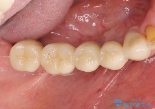 重度の虫歯 インプラント治療の治療後