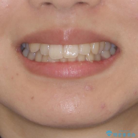インビザラインでスッキリとした口元にの治療前(顔貌)