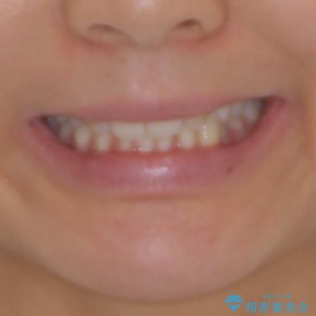 上顎前歯が2本欠損 インビザラインによる叢生の解消の治療前(顔貌)