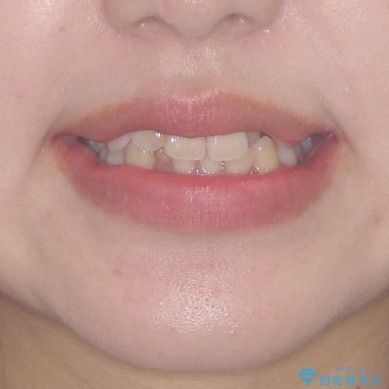 短期間で終了 デコボコをワイヤー矯正で解消の治療前(顔貌)