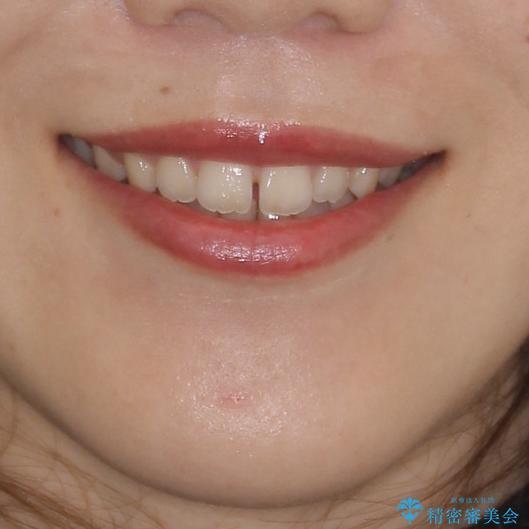 気になる隙間の再矯正 前歯をインビザライン・ライトで改善の治療前(顔貌)