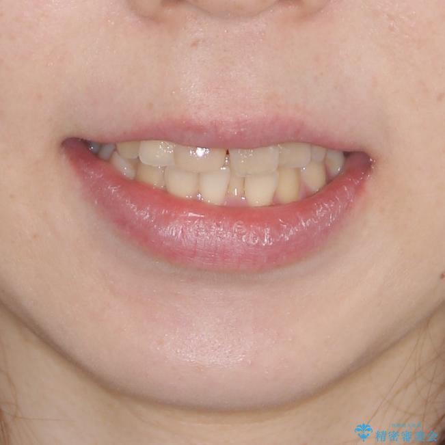 抜歯矯正の後戻り インビザラインによるオープンバイトの再矯正の治療前(顔貌)